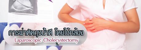 การผ่าตัดถุงน้ำดีโดยใช้กล้อง Laparoscopic Cholecystectomy