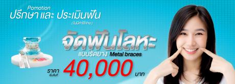 จัดฟันโลหะแบบรัดยาง Metal braces
