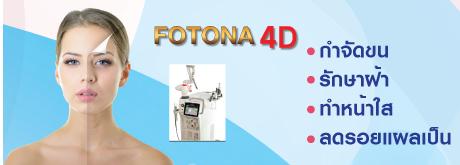 Fotona4D กำจัดขน รักษาฝ้า ทำหน้าใส ลดรอยแผลเป็น